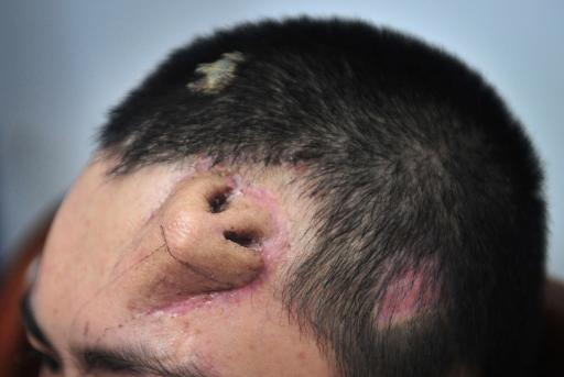 Des chirurgiens chinois ont fait pousser un nez sur le front d un    Japanese Giant Hornet Sting Wound